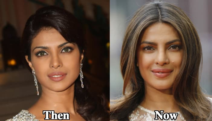 Priyanka Chopra Before Plastic Surgery Lips photo - 1