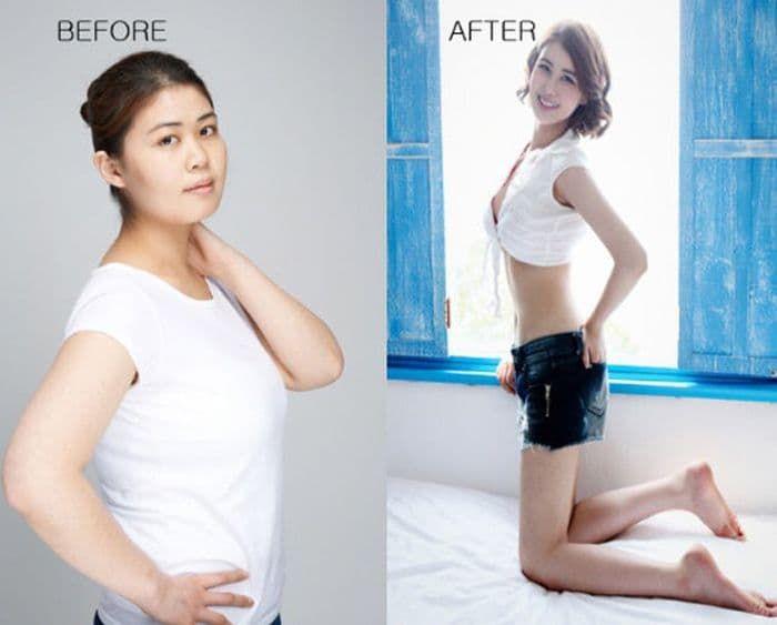 Qui Qui Plastic Surgery Before And After photo - 1
