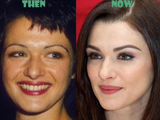 Rachel Weisz Plastic Surgery Before And After photo - 1