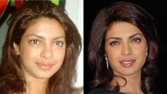 Rakhi Sawant Before And After Plastic Surgery Pictures photo - 1