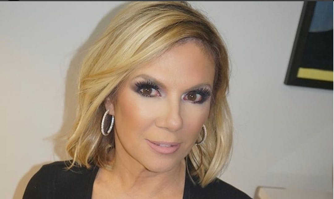 Ramona Singer Before And After Plastic Surgery photo - 1