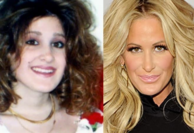 Real Housewives Before Plastic Surgery photo - 1