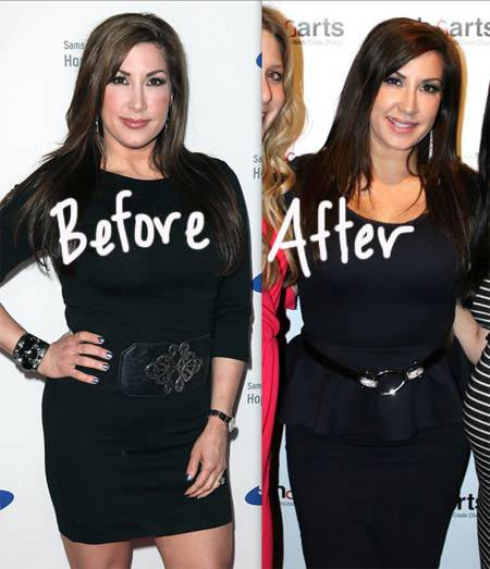 Real Housewives Of New Jersey Plastic Surgery Before And After photo - 1