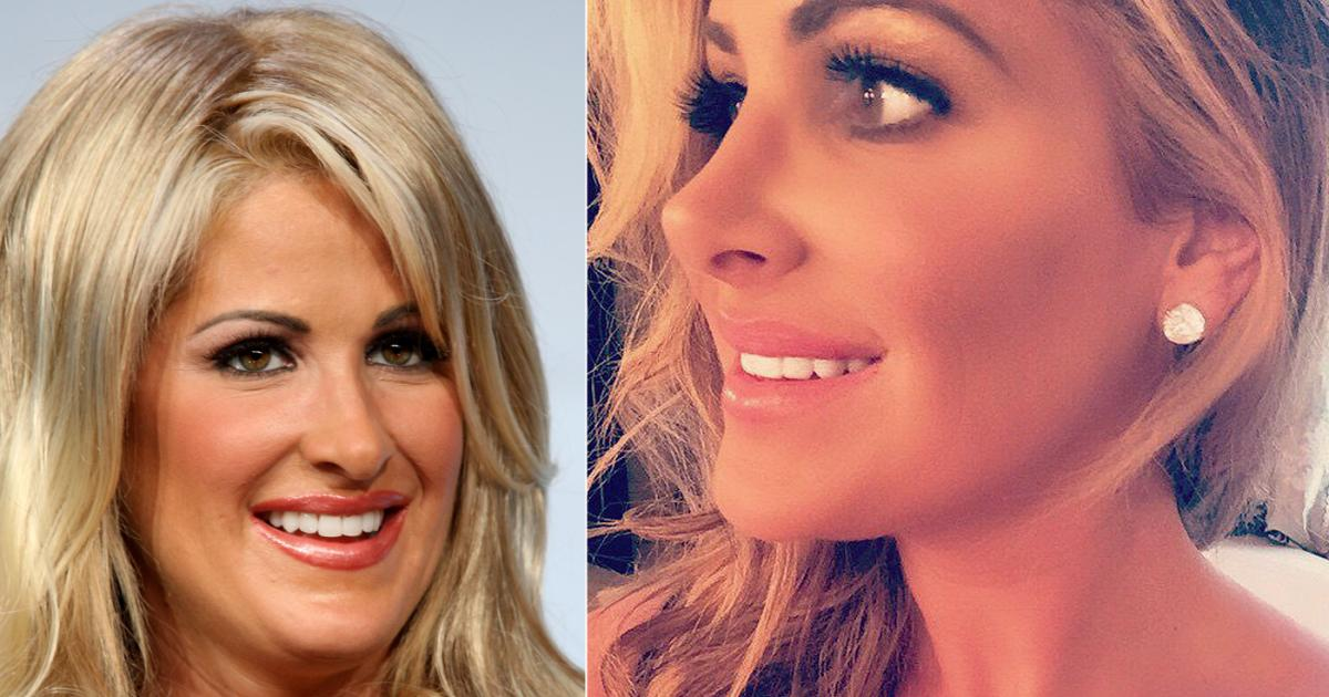 Real Housewives Of New York Plastic Surgery Before And After photo - 1