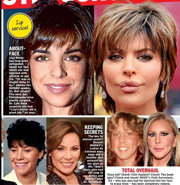 Real Plastic Surgery Before And After photo - 1
