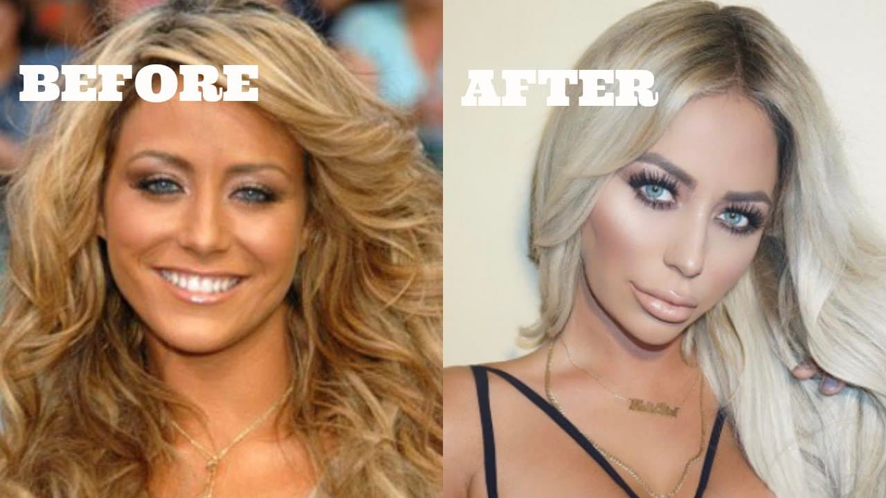 Reality Stars Before And After Plastic Surgery photo - 1