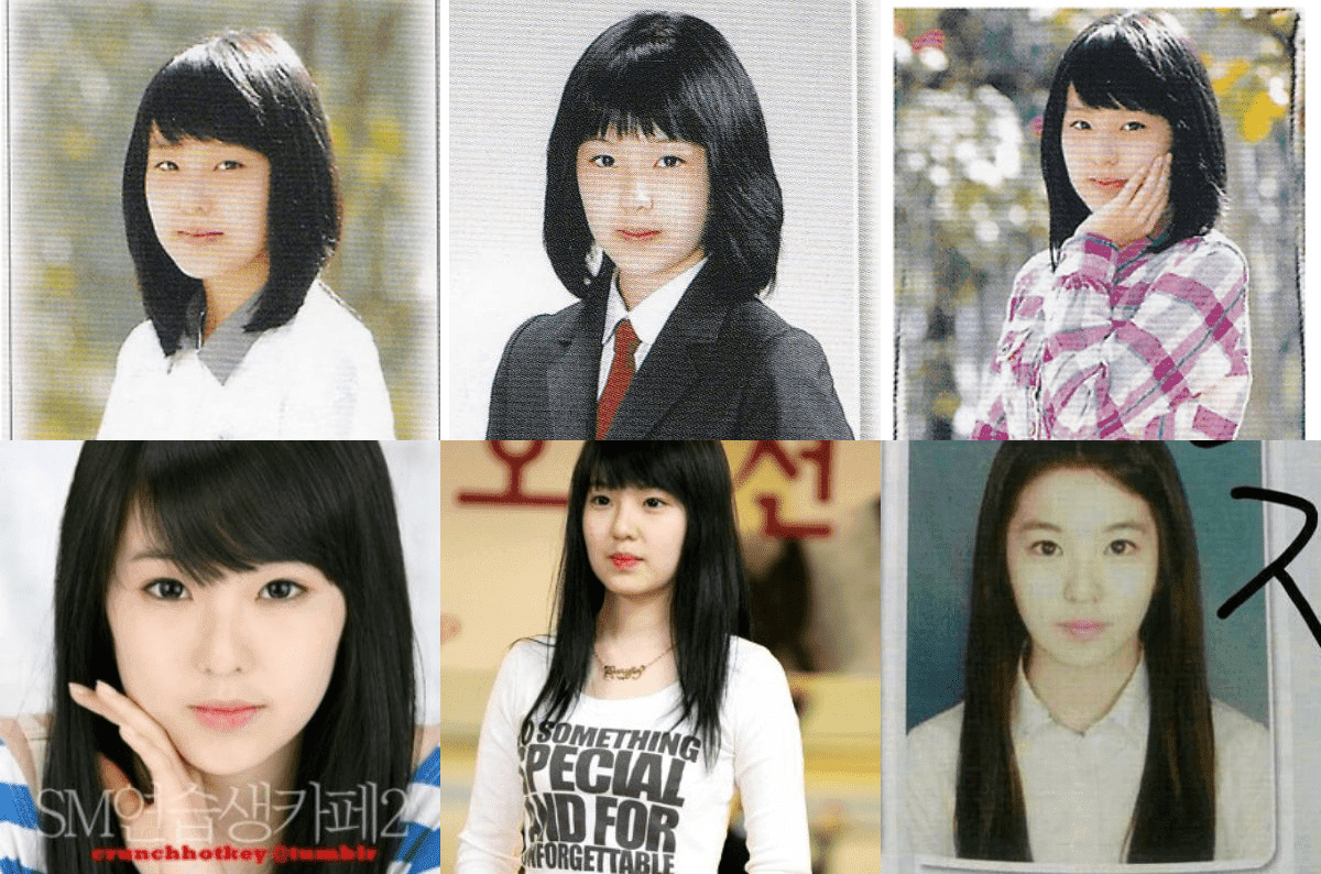 Red Velvet Before Plastic Surgery photo - 1