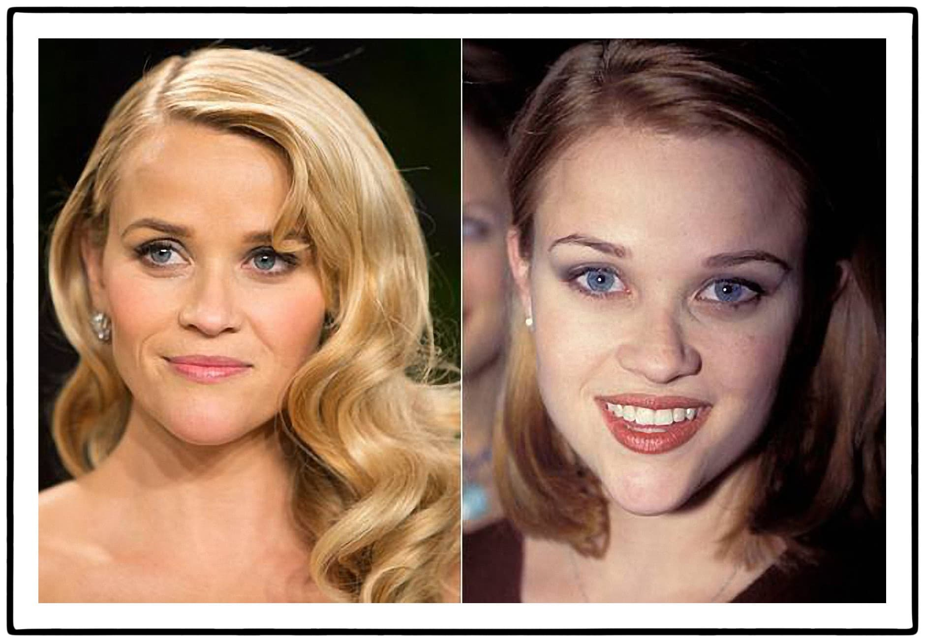Reese Witherspoon Before And After Plastic Surgery photo - 1