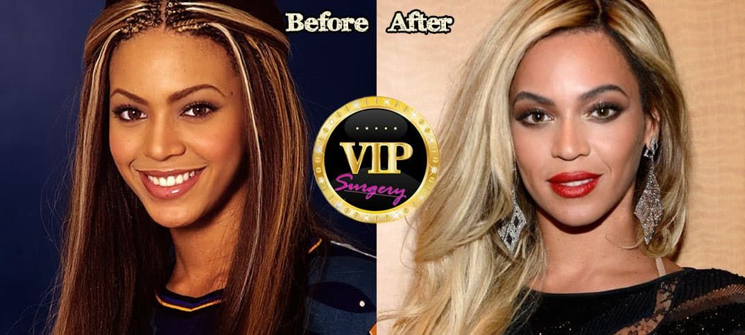 Reese Witherspoon Plastic Surgery Before And After photo - 1