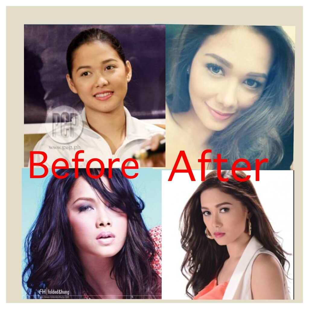 Regine Velasquez Before And After Plastic Surgery photo - 1