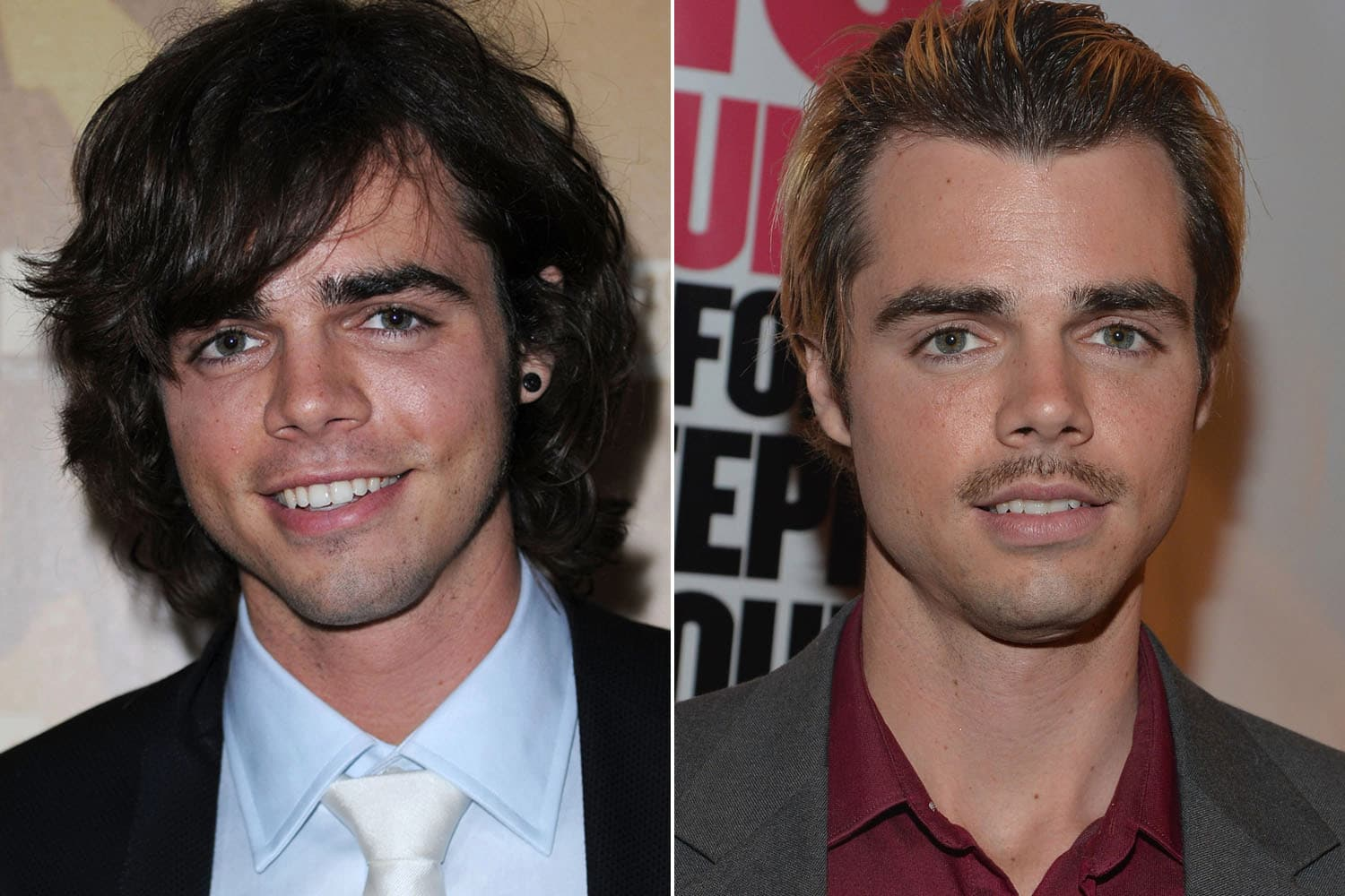 Reid Ewing Before After Plastic Surgery photo - 1