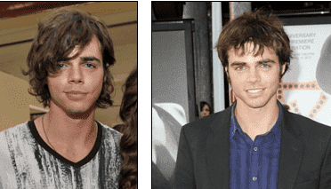 Reid Ewing Plastic Surgery Before And After photo - 1
