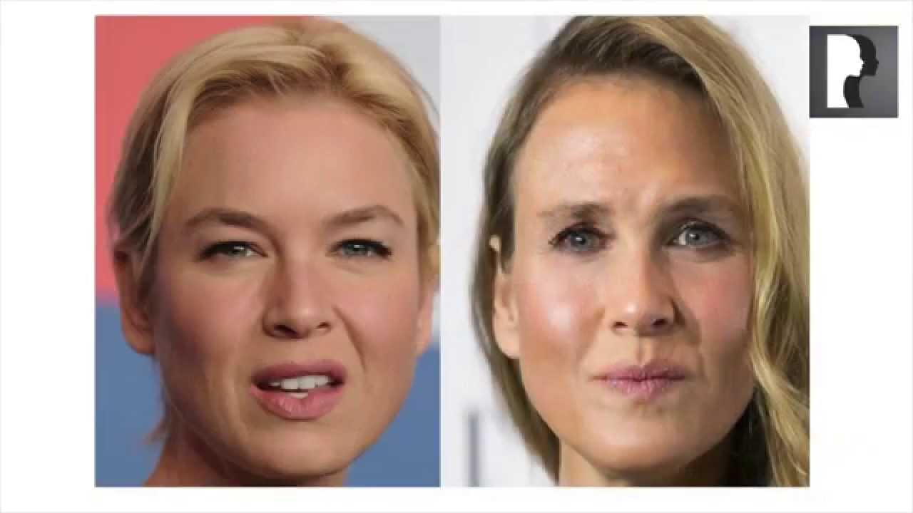 Renée Zellweger Before Plastic Surgery photo - 1