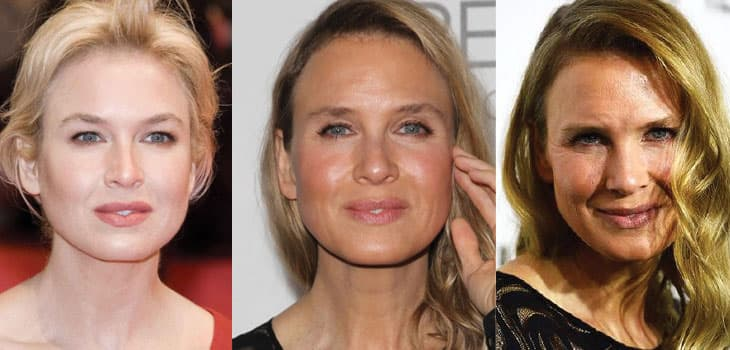 Rene Zellweger Before And After Plastic Surgery photo - 1