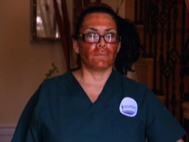 Renee Mob Wives Plastic Surgery Before And After photo - 1