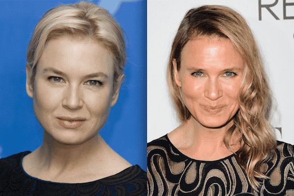 Renee Zellweger Before After Plastic Surgery photo - 1