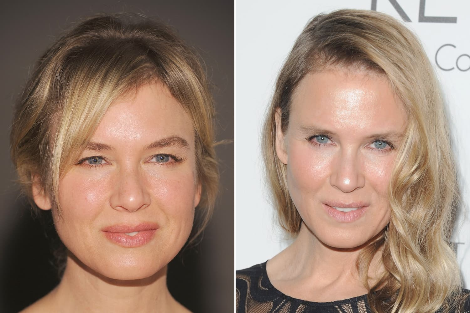 Renee Zellweger Before And Aft4Er Plastic Surgery 1 photo - 1