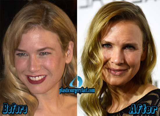 Renee Zellweger Plastic Surgery Before photo - 1