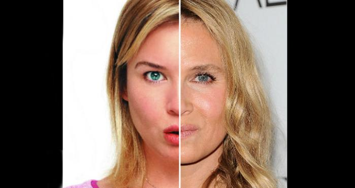 Renee Zellweger Plastic Surgery Before After photo - 1