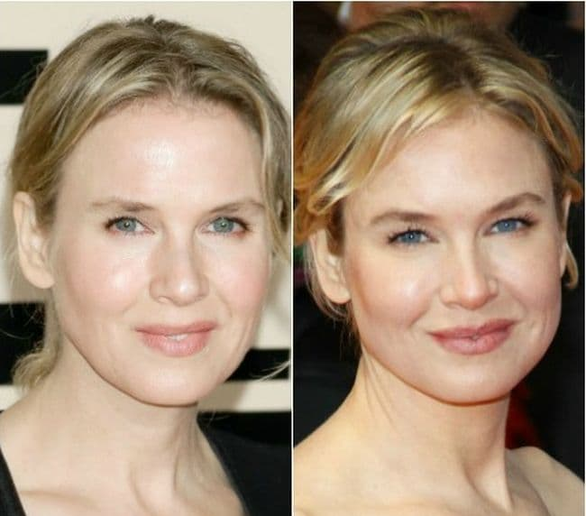 Renee Zellweger Plastic Surgery Before After Photos photo - 1