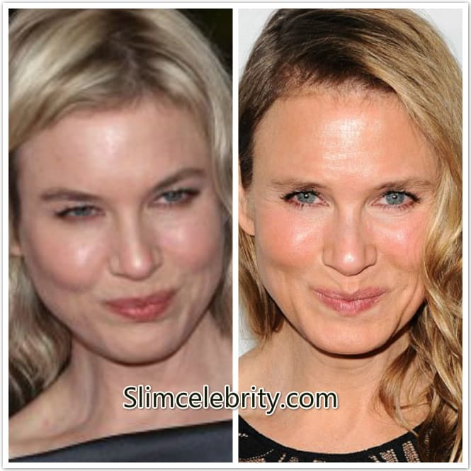 Renee Zellweger Plastic Surgery Before And After 2013 photo - 1