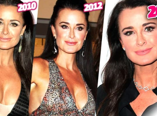 Rhobh Kyle Plastic Surgery Before And After photo - 1