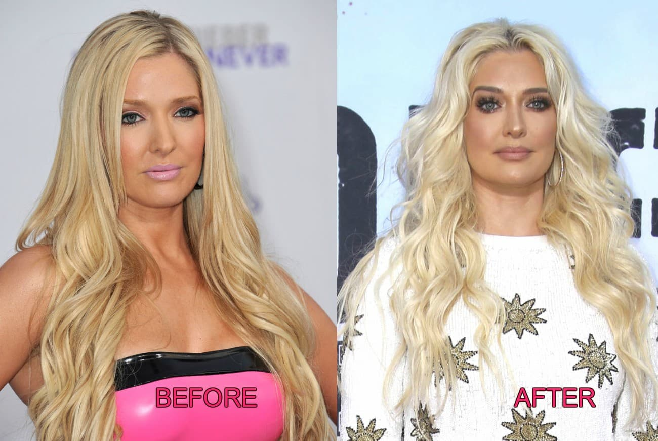 Rhobh Plastic Surgery Before And After photo - 1