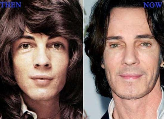 Rick Springfield Plastic Surgery Before And After photo - 1