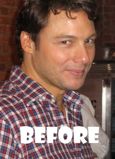 Rocco Dispirito Before Plastic Surgery photo - 1
