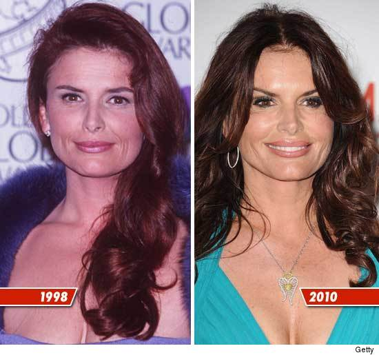 Roma Downey Touched By An Angel Before Plastic Surgery photo - 1