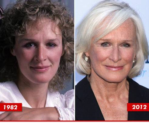 Roseanne Plastic Surgery Before After photo - 1