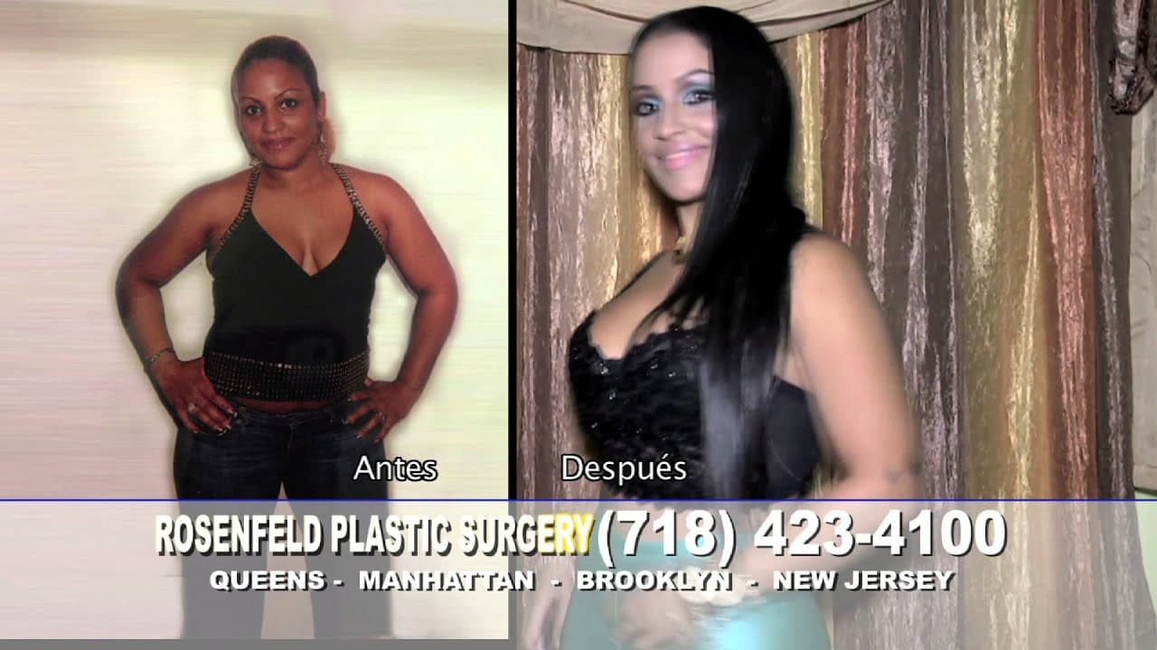 Rosenfeld Plastic Surgery Before And After photo - 1