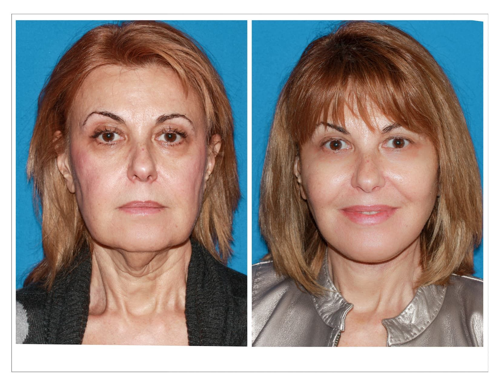 Russian Plastic Surgery Before And After photo - 1