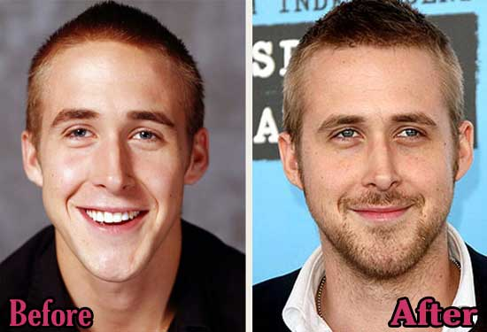 Ryan Gosling Before And After Plastic Surgery photo - 1