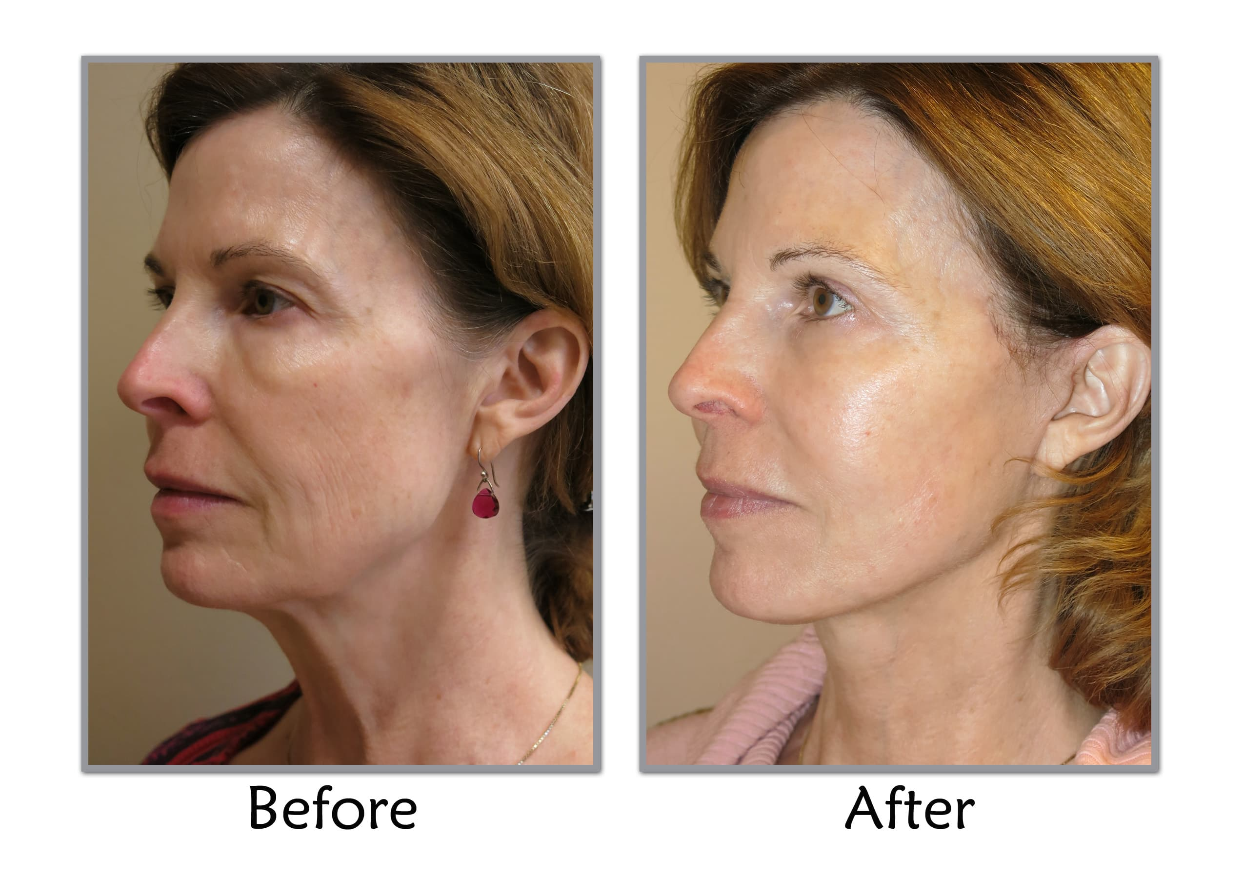 Salt Lake City Plastic Surgery Before And After photo - 1