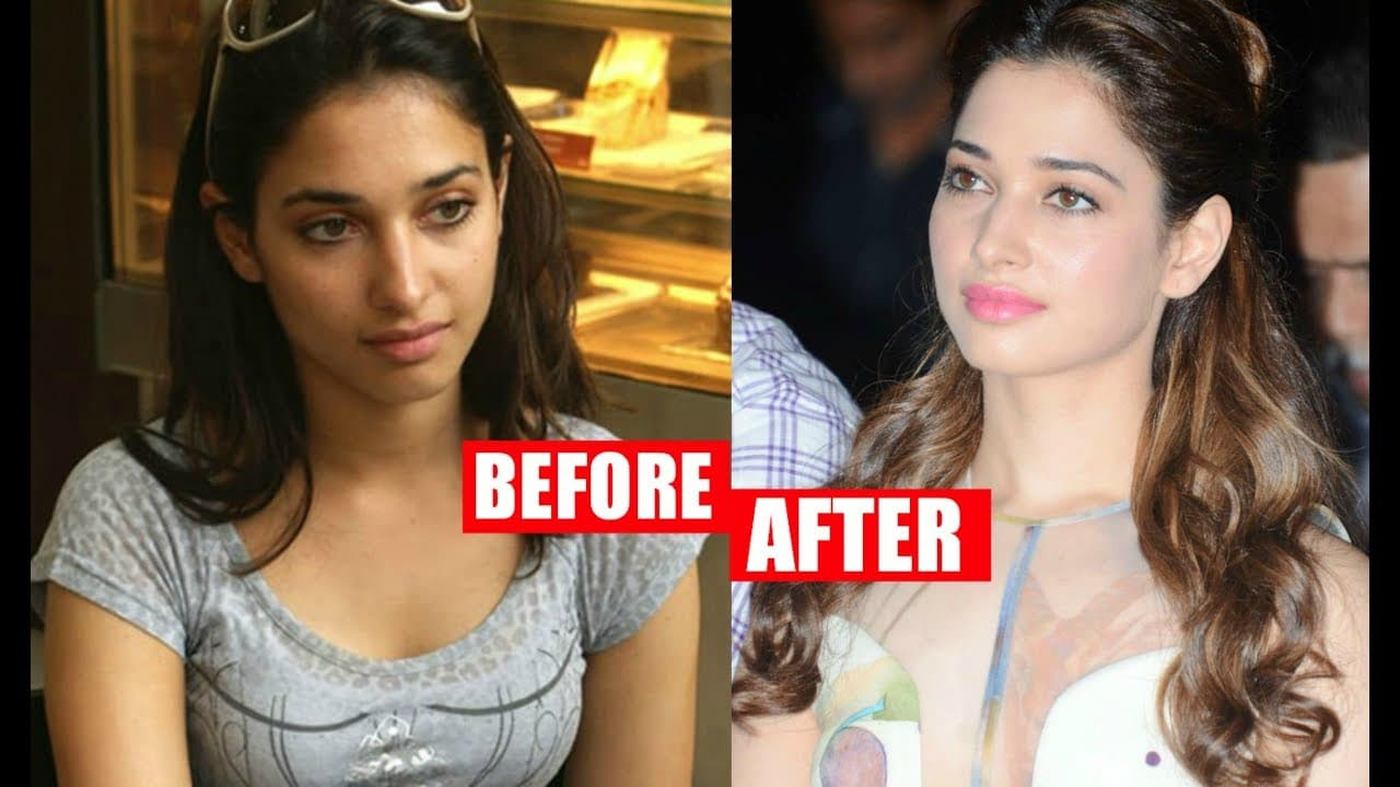 Samantha Before And After Plastic Surgery photo - 1