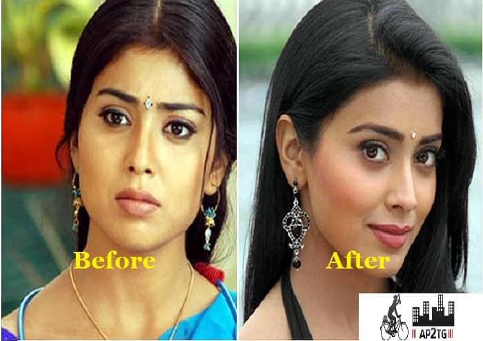 Samantha Ruth Prabhu Before After Plastic Surgery photo - 1