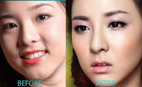 Sandara Park Plastic Surgery Before And After photo - 1