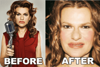 Sandra Bernhard Plastic Surgery Before And After photo - 1
