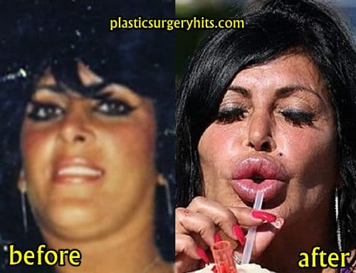 Sarah Silverman Before And After Plastic Surgery photo - 1