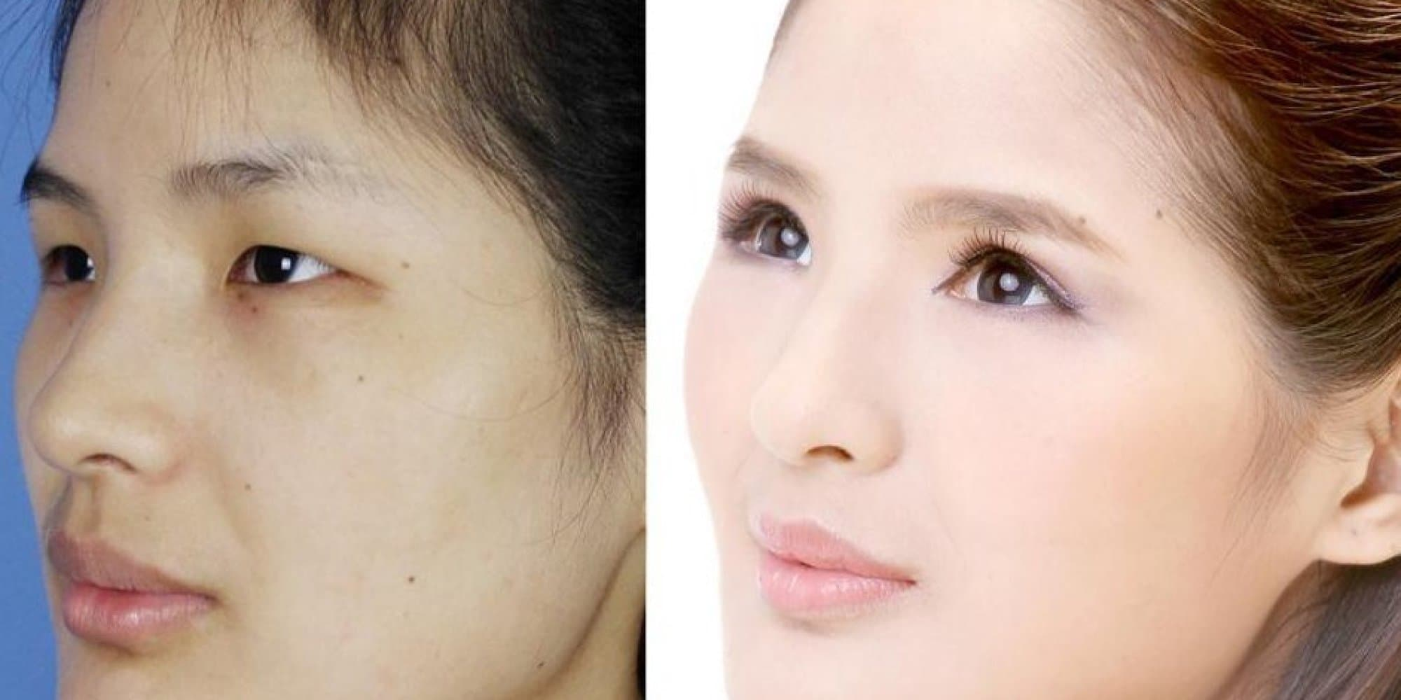 Satire Before And After Plastic Surgery photo - 1