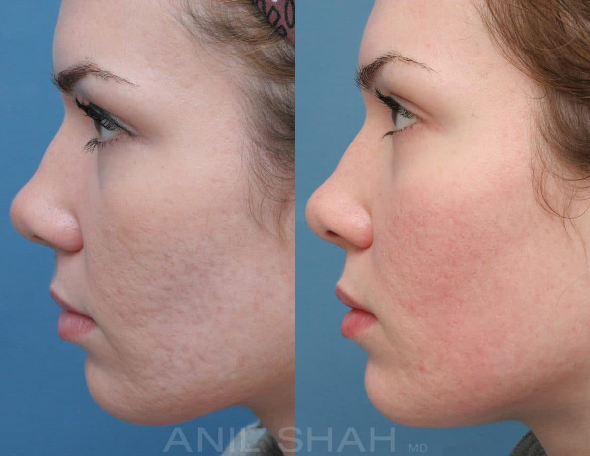 Scar Removal Plastic Surgery Before And After photo - 1