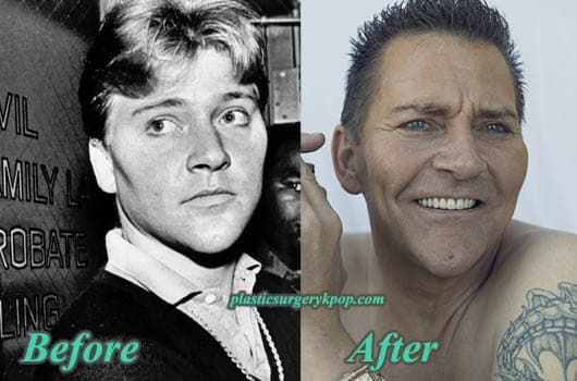 Scott Thorson Plastic Surgery Before And After photo - 1