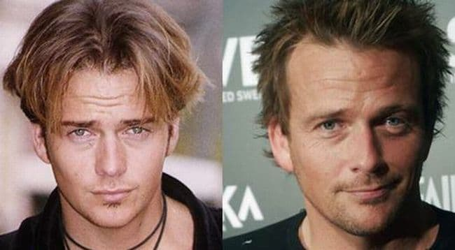 Sean Patrick Flanery Plastic Surgery Before And After photo - 1