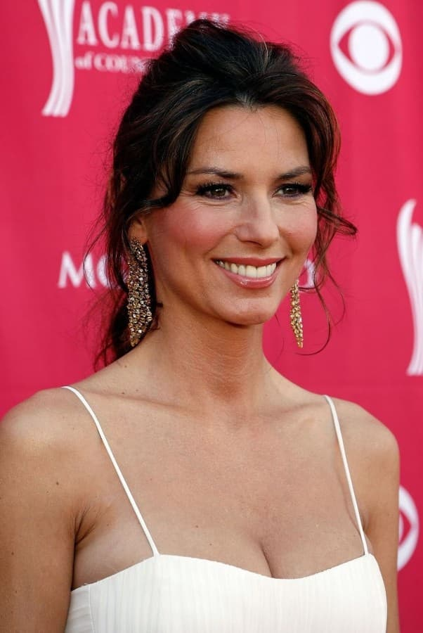 Shania Twain Plastic Surgery Before And After photo - 1
