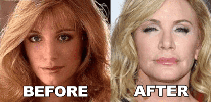 Shannon Tweed Before And After Plastic Surgery photo - 1