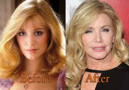 Shannon Tweed Before Plastic Surgery photo - 1