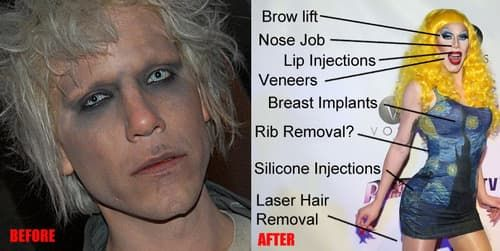 Sharon Needles Plastic Surgery Before And After photo - 1