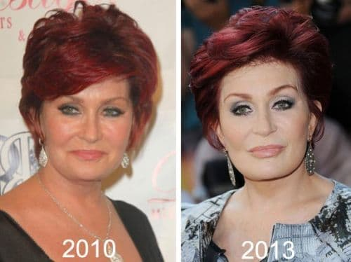 Sharon Osborne Before Plastic Surgery photo - 1