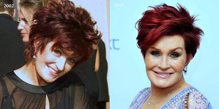 Sharon Osbourne Before And After Plastic Surgery photo - 1